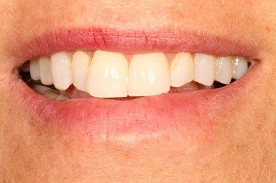 Anterior Veneers Before